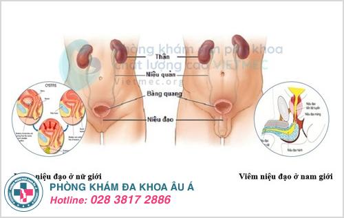 Cách chữa viêm niệu đạo mãn tính ở nam giới và phụ nữ