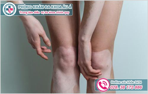 Chân bị nổi đốm trắng là dấu hiệu bệnh gì?