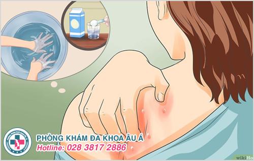 Chữa bệnh ghẻ bằng nước muối có triệt để không?
