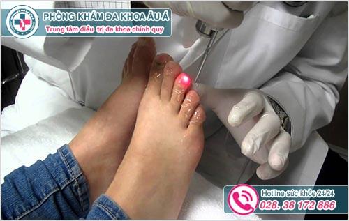 Chữa bệnh nấm móng chân ở đâu TPHCM? Chữa trị bao nhiêu tiền?