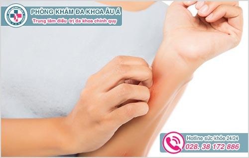 Da bị nổi mẩn ngứa vào mùa hè là dấu hiệu bệnh gì ?