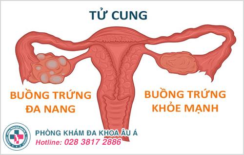 Buồng trứng đa nang gây rối loạn chu kỳ kinh nguyệt và quá trình rụng của trứng