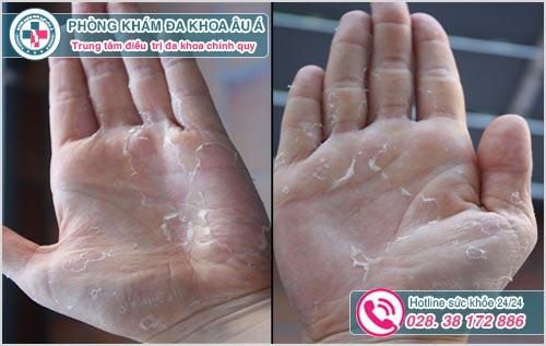 Da tay bị bong tróc và ngứa là dấu hiệu bệnh gì?