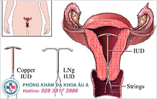 Đặt vòng tránh thai là gì? Đặt vòng có ảnh hưởng gì không?