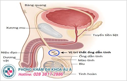 Đau buốt ống dẫn tinh là bệnh gì?