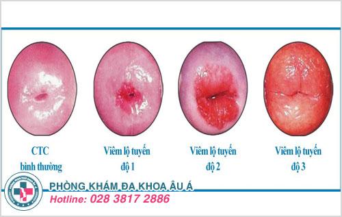Viêm lộ tuyến cổ tử cung qua mỗi cấp độ