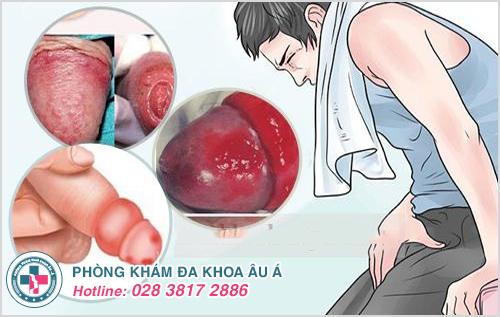 Dấu hiệu sau khi cắt bao quy đầu bị nhiễm trùng
