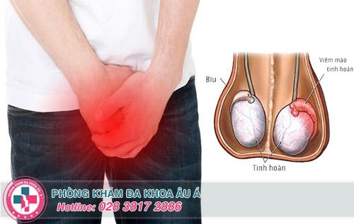 Nguyên nhân nào gây đau mào tinh hoàn ở nam giới?