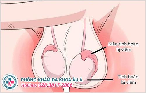 Đau tinh hoàn phải và bụng dưới có nguy hiểm không?