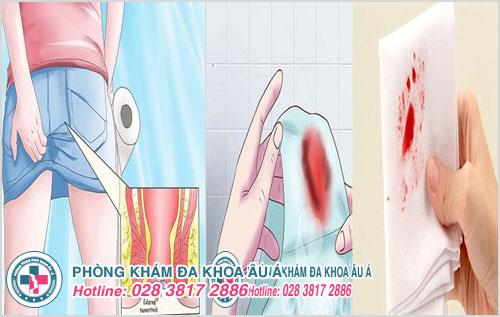 Biểu hiện đi cầu ra máu đau rát hậu môn gây thấm máu qua giấy vệ sinh hay quần nhỏ