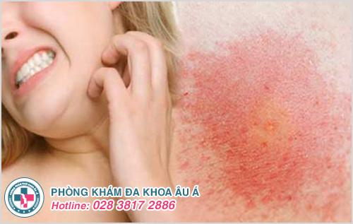 Dị ứng da : Hình ảnh nguyên nhân dấu hiệu và cách điều trị