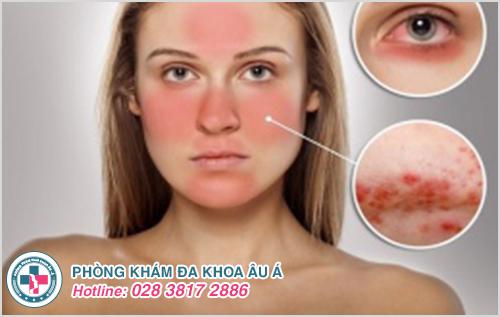 Dị ứng da mặt : Hình ảnh nguyên nhân dấu hiệu cách điều trị