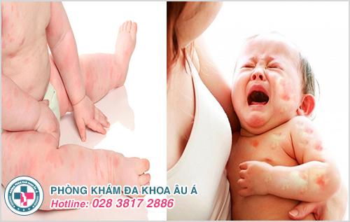Dị ứng ở trẻ em : Hình ảnh nguyên nhân dấu hiệu cách chữa