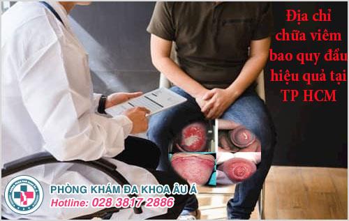 Địa chỉ chữa viêm bao quy đầu hiệu quả tại TP HCM