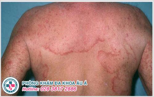 Hắc lào ở lưng : Nguyên nhân dấu hiệu cách điều trị
