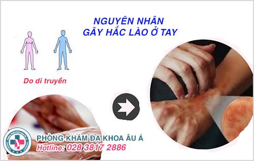Hắc lào ở tay : Nguyên nhân dấu hiệu cách điều trị