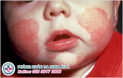 Hắc lào ở trẻ sơ sinh : Nguyên nhân dấu hiệu cách trị