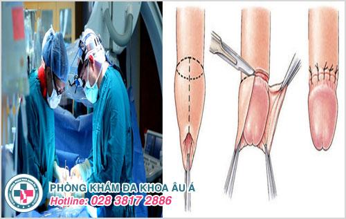 Phẫu thuật là cách tốt nhất thoát khỏi tình trạng hẹp bao quy đầu