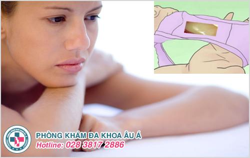 Hình ảnh âm đạo chảy mủ ở phụ nữ