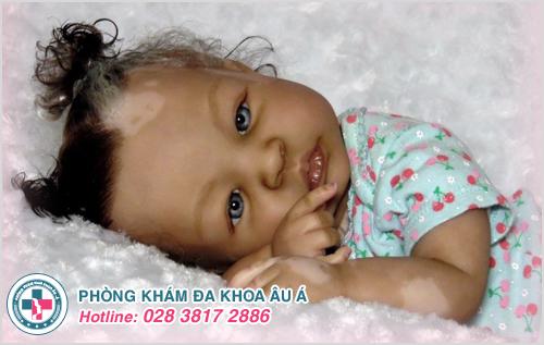 Hình ảnh bạch biến ở trẻ sơ sinh