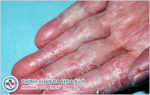 Một số hình ảnh bệnh á sừng ở tay