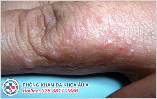Hình ảnh bệnh chàm khô đầu ngón tay