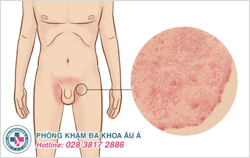 Hình ảnh bệnh chàm ở háng