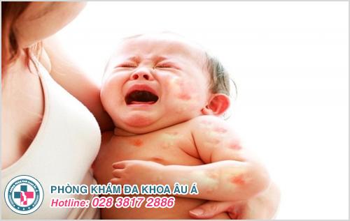 Hình ảnh bệnh chàm ở trẻ em trẻ sơ sinh