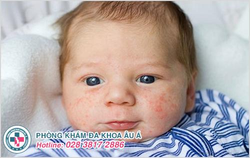 Hình ảnh bệnh chàm sữa ở trẻ sơ sinh