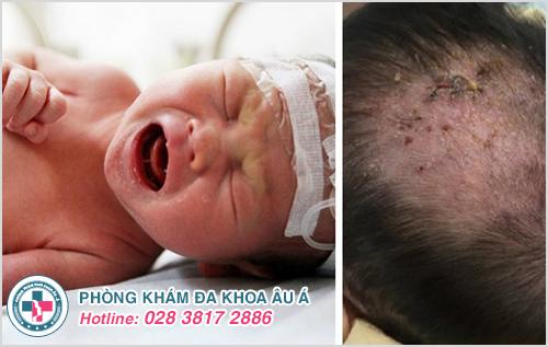 Hình ảnh bệnh chốc đầu ở trẻ em