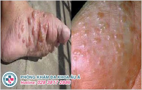 Hình ảnh bệnh tổ đỉa ở chân