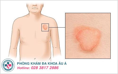 Hình ảnh bệnh vảy nến hồng