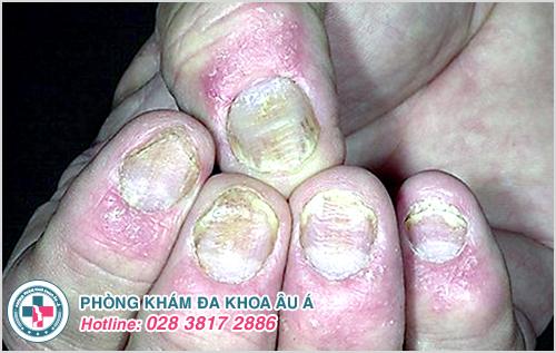 Hình ảnh bệnh vẩy nến móng tay