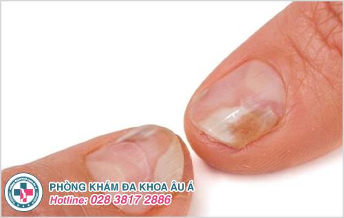 Bệnh vẩy nến móng tay: Nguyên nhân dấu hiệu và cách trị