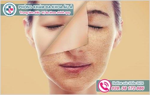 Một số hình ảnh da mặt bị nổi sần