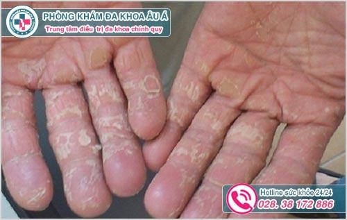 Một số hình ảnh da tay bị bong tróc và ngứa