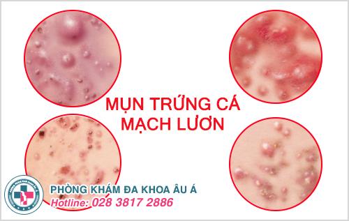 Hình ảnh mụn trứng cá mạch lươn