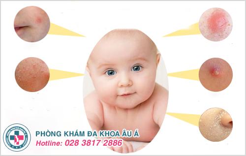 Hình ảnh mụn trứng cá ở trẻ sơ sinh trẻ em