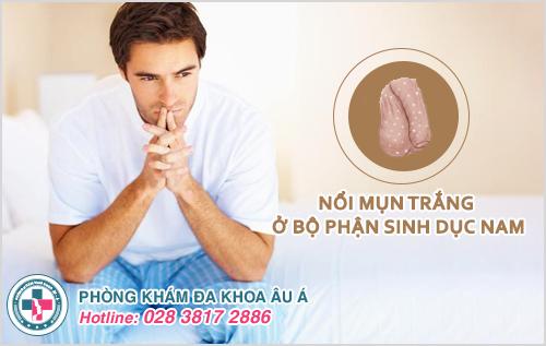 Hình ảnh nổi mụn trắng ở bộ phận sinh dục nam giới