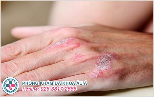 Hình ảnh bệnh vẩy nến da tay