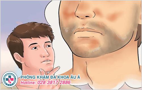 Vảy nến ở mặt: Nguyên nhân dấu hiệu và cách điều trị