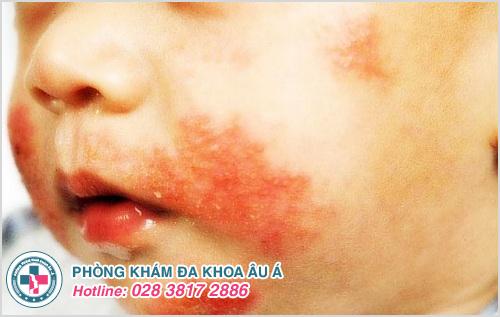 Hình ảnh viêm da liên cầu ở trẻ sơ sinh