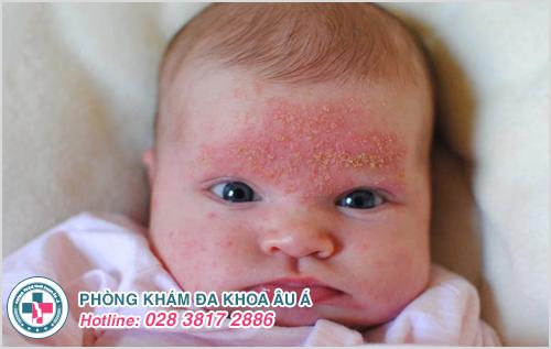 Hình ảnh viêm da ở trẻ sơ sinh trẻ em