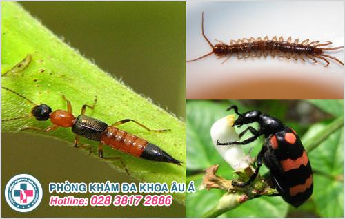 Hình ảnh viêm da tiếp xúc côn trùng