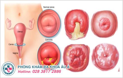 Hình ảnh viêm phụ khoa ở phụ nữ