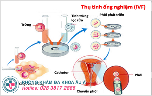 Chữa vô sinh cho nam giới bằng phương pháp IVF