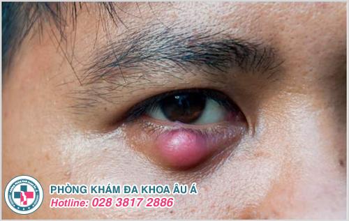 Hướng dẫn cách trị mụn lẹo ở mắt an toàn hiệu quả