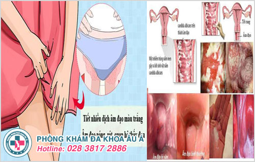Biểu hiện của bệnh viêm âm đạo ở nữ giới