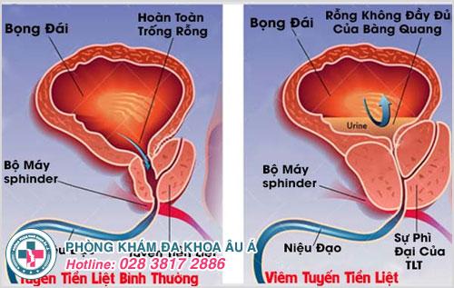 Tuyến tiền liệt bình thường và viêm tuyến tiền liệt (ảnh minh họa)
