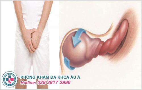 Xoắn tinh hoàn là bệnh gây những cơn đau dữ dội ở tinh hoàn khiến nam giới khó chịu